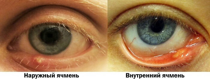 Ячмень на глазу у человека