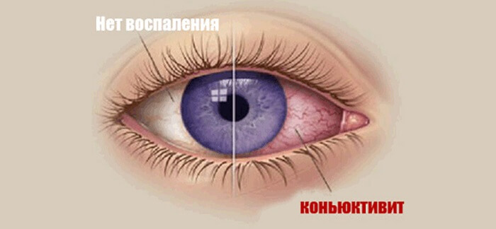 Заболевание глаза человека