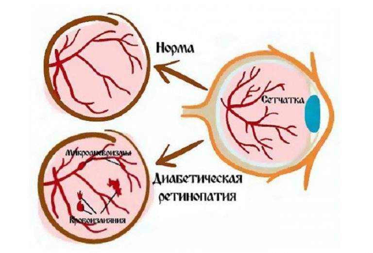 Осложнения на глаза при сахарном диабете