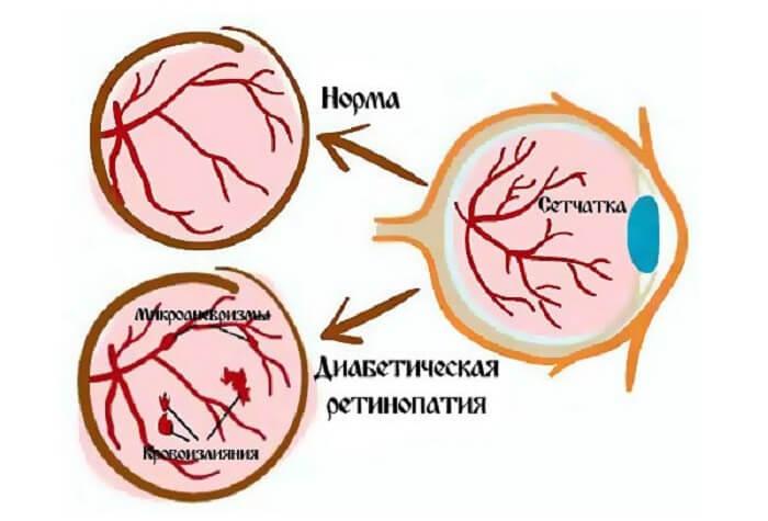 Диабетическая ретинопатия глаза