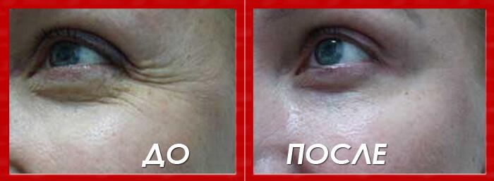 Эффект после крема