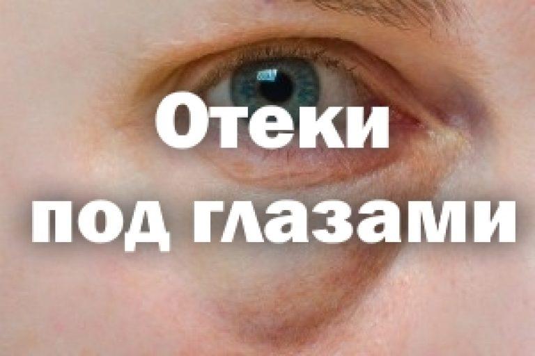 Отеки под глазами: причины, лечение, как убрать их