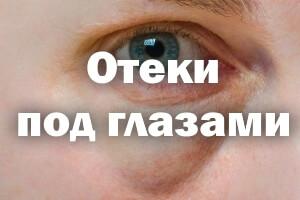Отеки под глазами