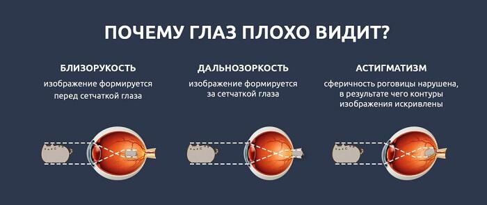 Улучшения остроты зрения при близорукости thumbnail
