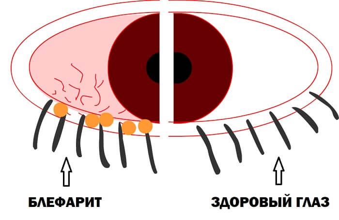 Развитие блефарита глаза
