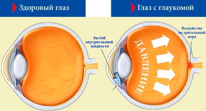 Развитие глаукомы человека