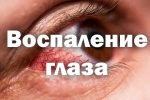 Воспаление глаза, покраснение, лечение