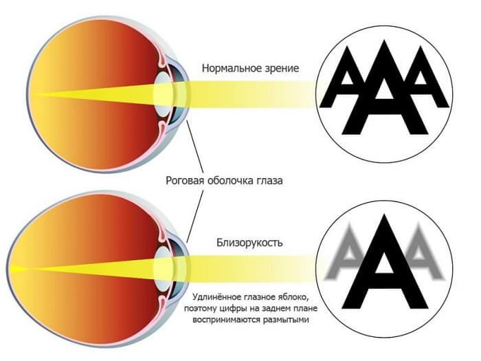Зрение человека при близорукости