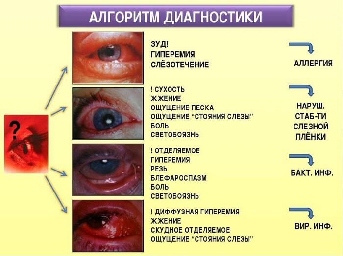 Алгоритм диагностики глаза