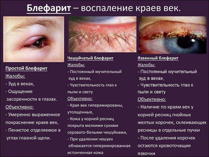 Блефарит глаз человека