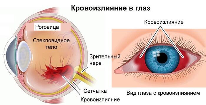 Кровоизлияние в глаз человека