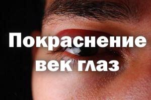 Покраснение век глаз причины и лечение