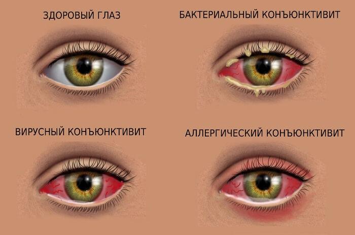 Покраснения глаза при конъюнктивите