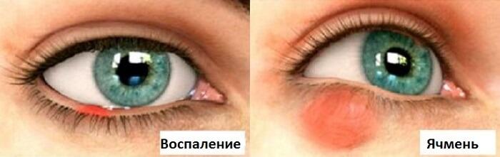 Различия ячменя от воспаления