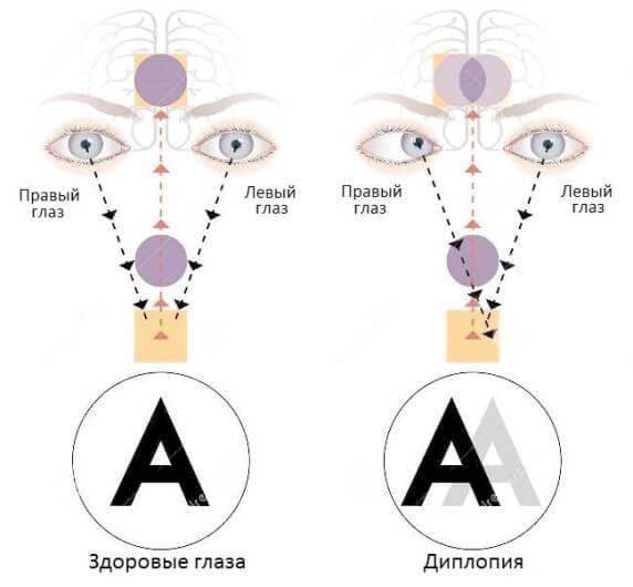 Схема диплопии