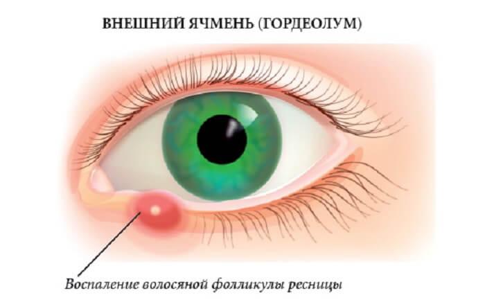 Воспаление фолликулы глаза