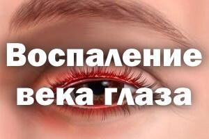 Воспаление века глаза