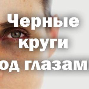 Черные круги под глазами