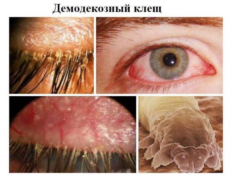 Глаза клещи ресница лечение