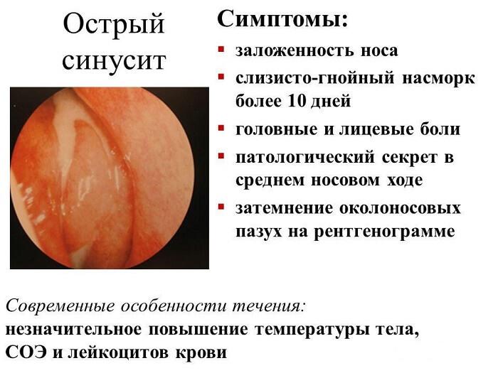 Острый синусит у человека
