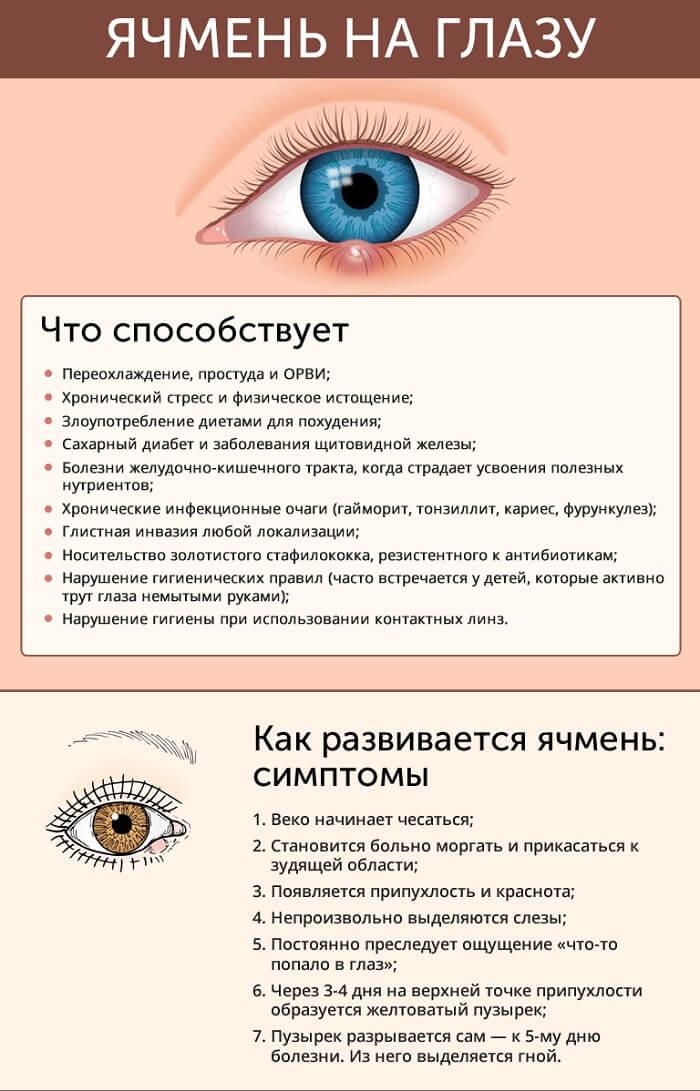 Появление и симптомы ячменя