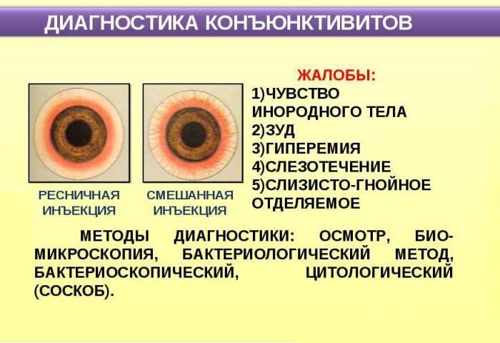 Правильная диагностика конъюнктивита