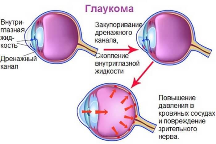 Проявление глаукомы у человека