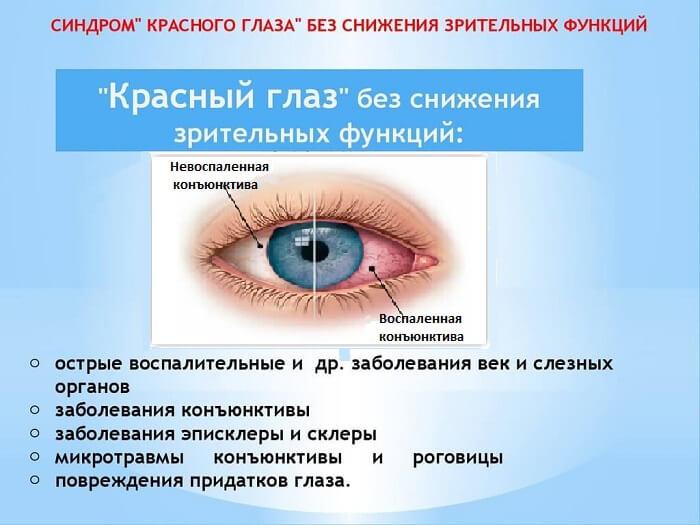 Синдром красного глаза