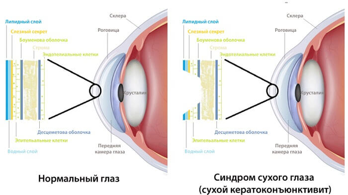 Сухой кератоконъюнктивит человека
