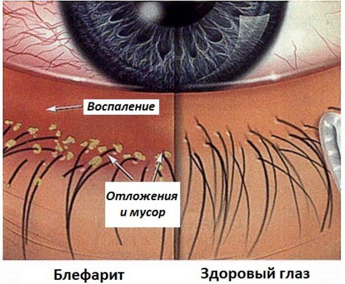 Блефарит - воспаление глаза