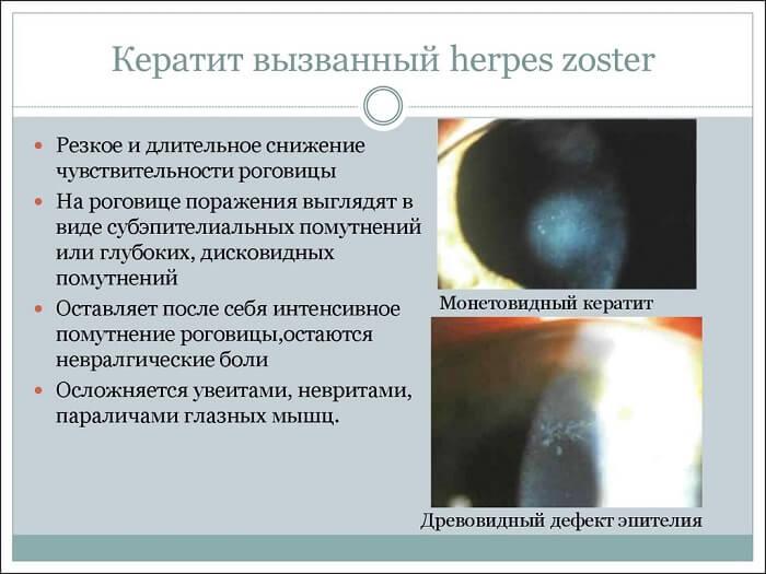 Кератит, вызванный вирусом