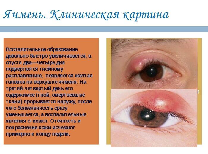 Клиническая картина ячменя