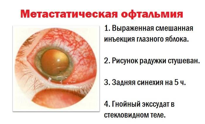 Метастатическая офтальмия глаза