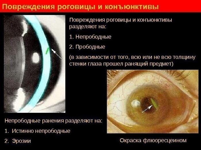 Повреждение роговицы, склеры