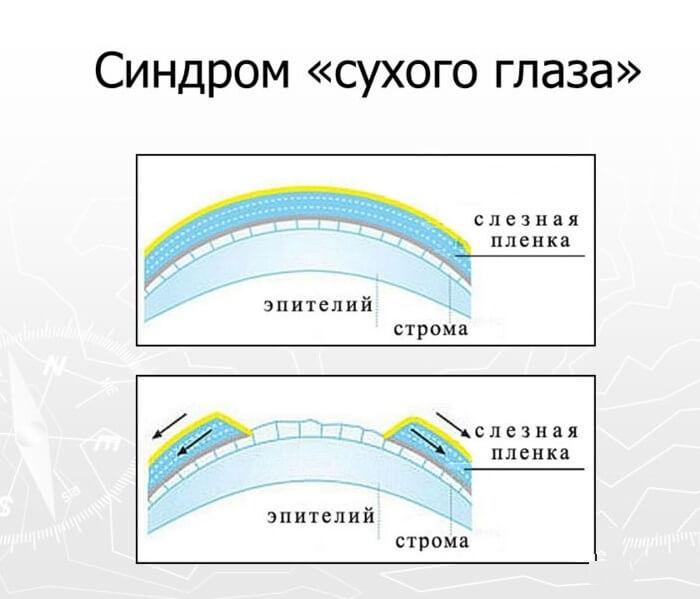 Синдром сухого глаза у человека