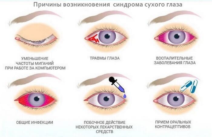 Картинки по запросу Визомитин в глаза