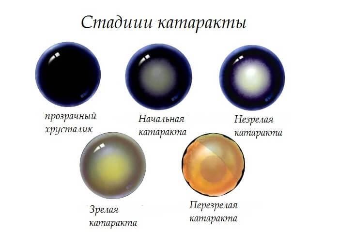 Основные стадии катаракты