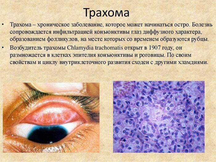 Трахома роговицы глаза
