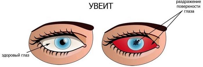 Увеит роговицы глаза