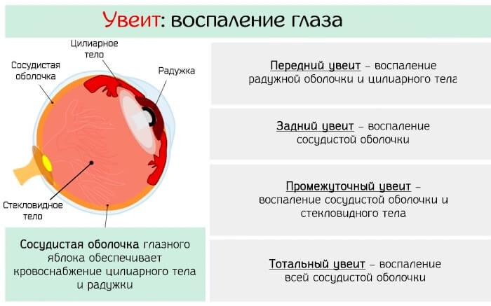 Увеит - воспаление роговицы