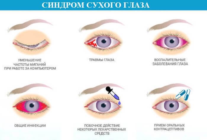Возникновение синдрома сухого глаза