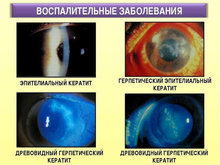 Язвенные поражения глаза