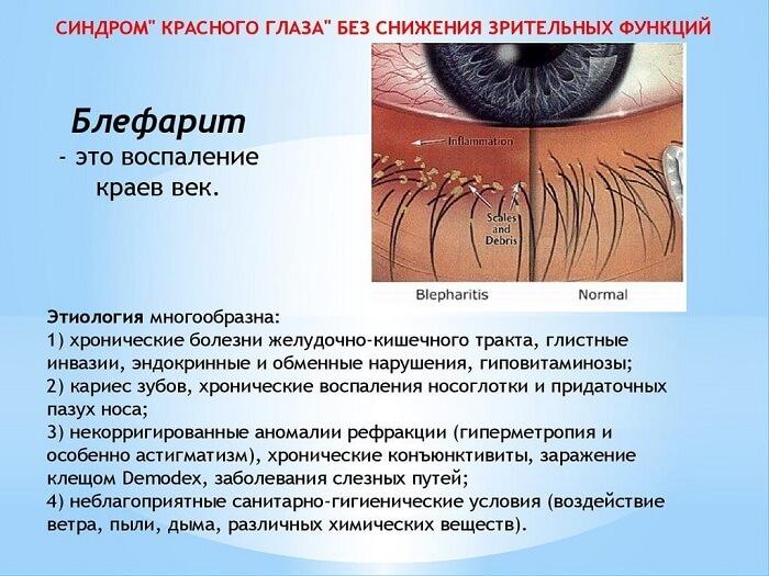 Заболевание блефарит глаза