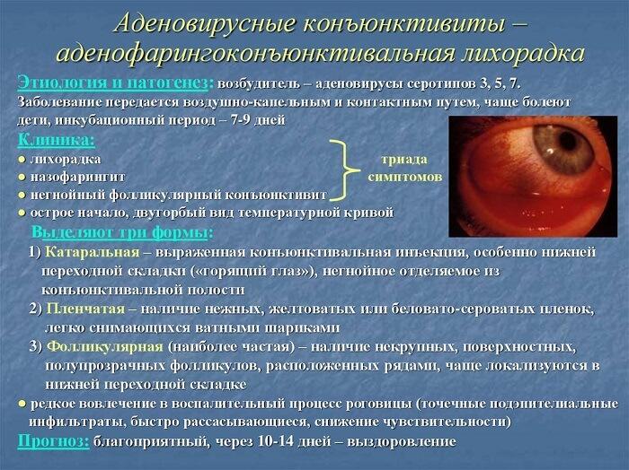 Аденовирусный кератоконъюнктивит глаза