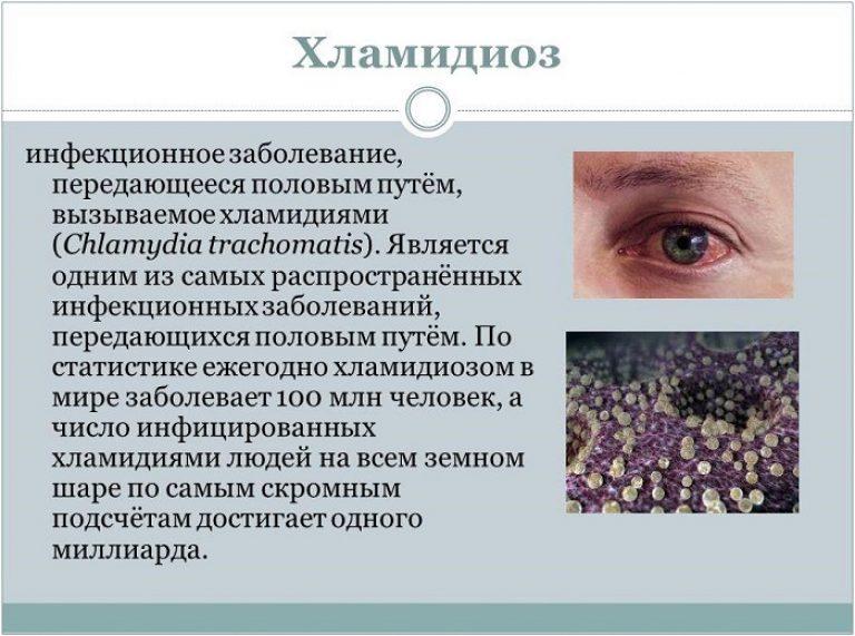 Венерические болезни хламидиоз