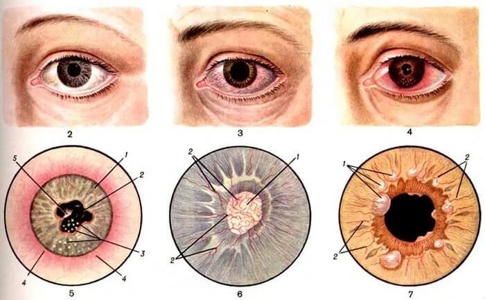 Ирит глаза человека