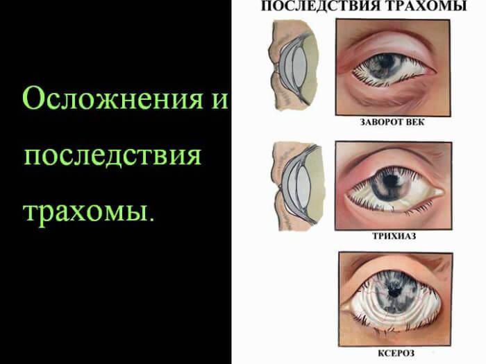 Последствия трахомы