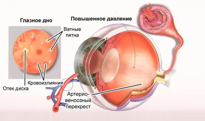 Повышенное давление в глазу