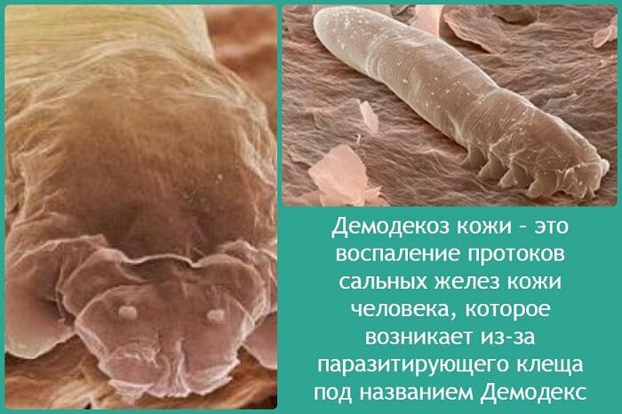 Воспаление кожи человека