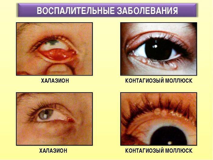 Воспалительные заболевания глаза